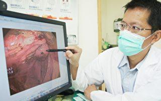 恶性肿瘤自民71年起,连续35年成为苗栗县民众死亡首因。图为医师在说明大肠癌。(中央社/提供)