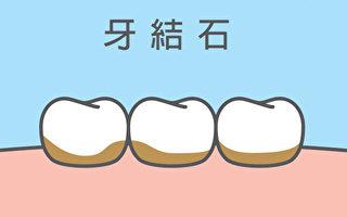 牙结石要怎样预防、治疗?(Shutterstock)