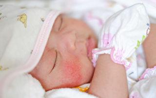 寶寶6種胎記斑點 哪些正常?哪些要看醫生?