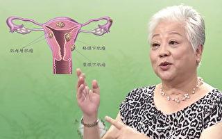 子宫肌瘤患者吃错长更大  中医师荐2碗药膳