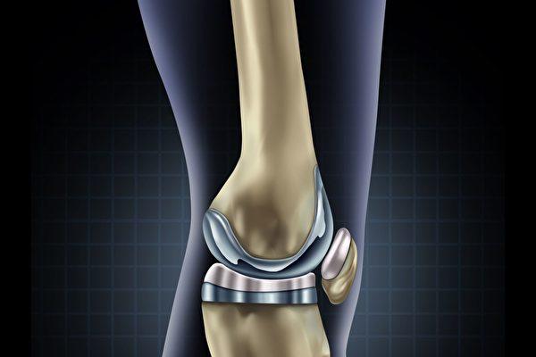 自供电智能膝关节假体 减少再手术次数