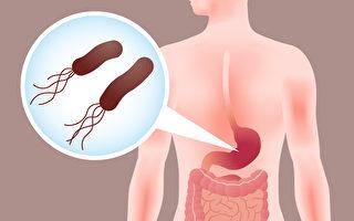 如何檢查出幽門螺旋桿菌,預防胃癌