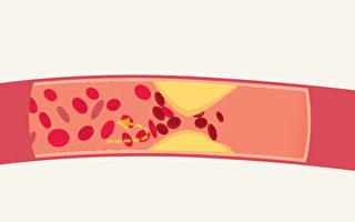 高血脂易引发心脏病和中风 2招天然降血脂