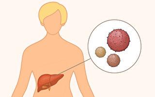 肝炎有ABCDE五种,哪些肝炎可能发展成肝癌?(Shutterstock/足球竞猜制图)