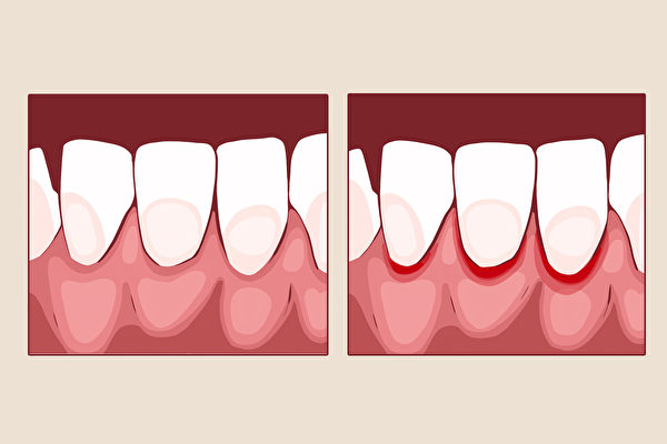 牙龈发炎不只引起出血,日后还可能带来牙齿松动、脱落等问题。(Shutterstock)