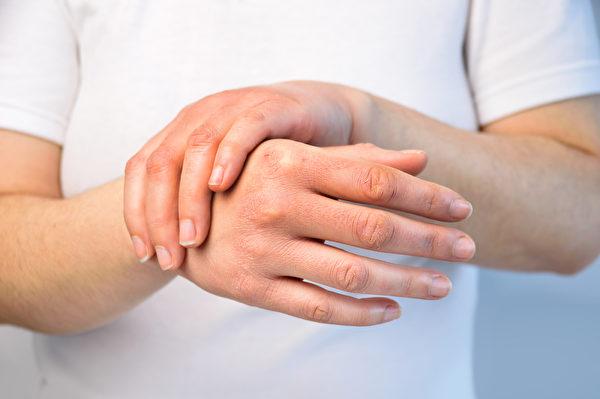 类风湿性关节炎是常见自体免疫疾病。(Shutterstock)