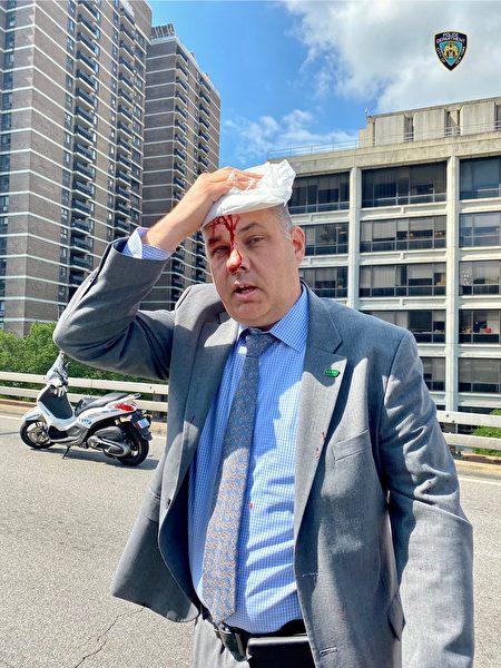 紐約市警官遭支持BLM民眾攻擊,頭破血流。
